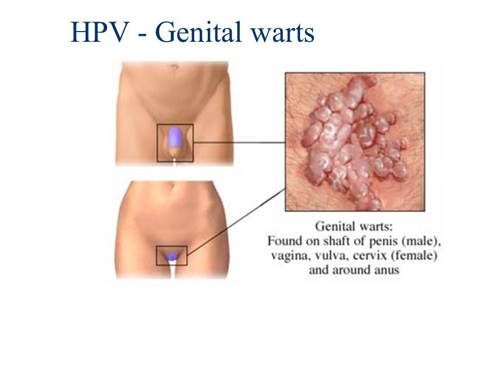 HPV - Genital warts