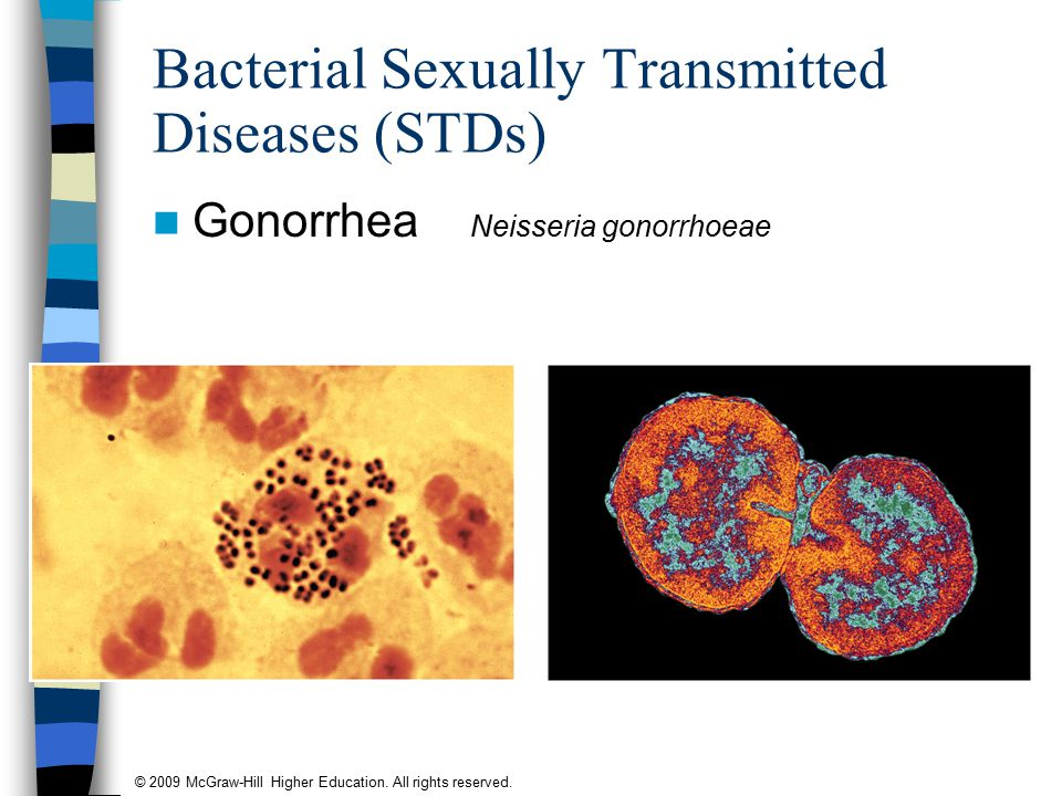 © 2009 McGraw-Hill Higher Education. All rights reserved. Bacterial Sexually Transmitted Diseases (STDs) Gonorrhea Neisseria gonorrhoeae