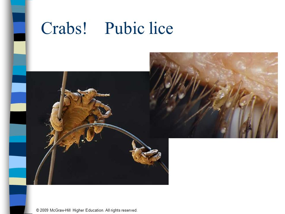 © 2009 McGraw-Hill Higher Education. All rights reserved. Crabs! Pubic lice