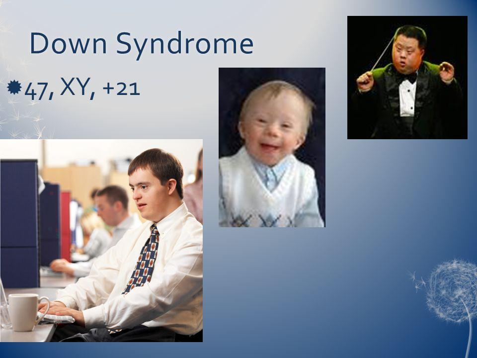 Down SyndromeDown Syndrome  47, XY, +21