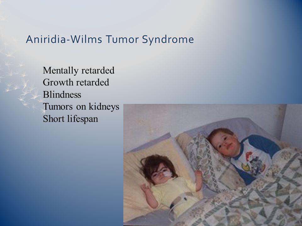 Aniridia-Wilms Tumor SyndromeAniridia-Wilms Tumor Syndrome Mentally retarded Growth retarded Blindness Tumors on kidneys Short lifespan