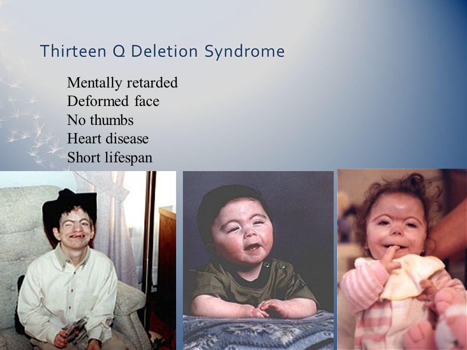 Thirteen Q Deletion SyndromeThirteen Q Deletion Syndrome Mentally retarded Deformed face No thumbs Heart disease Short lifespan