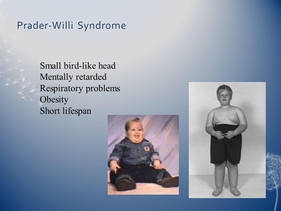 Prader-Willi SyndromePrader-Willi Syndrome Small bird-like head Mentally retarded Respiratory problems Obesity Short lifespan