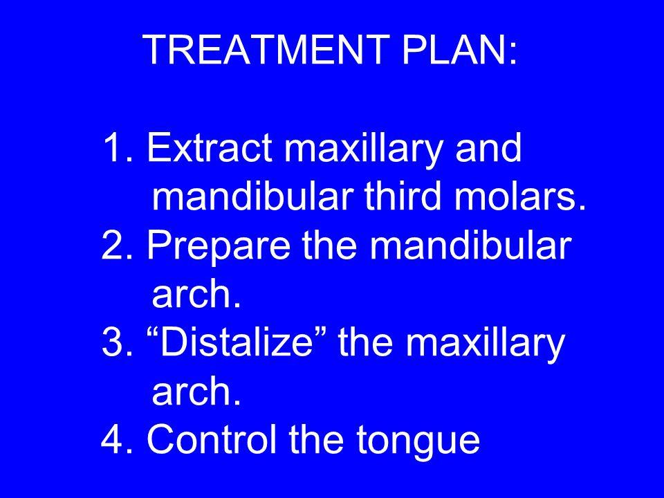 "TREATMENT PLAN: 1. Extract maxillary and mandibular third molars. 2. Prepare the mandibular arch. 3. ""Distalize"" the maxillary arch. 4. Control the to"