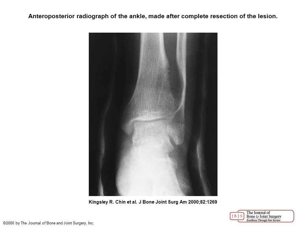 Anteroposterior radiograph of the ankle, made after complete resection of the lesion. Kingsley R. Chin et al. J Bone Joint Surg Am 2000;82:1269 ©2000