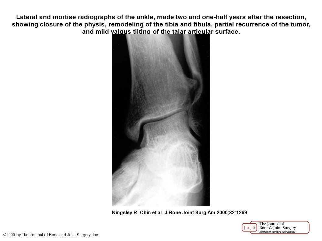 Representative mortise radiograph of the left ankle, showing substantial deformity of the distal aspect of the tibia and fibula with valgus tilting of the tibiotalar joint surface due to osteochondromas arising from the distal aspects of the tibia and fibul...
