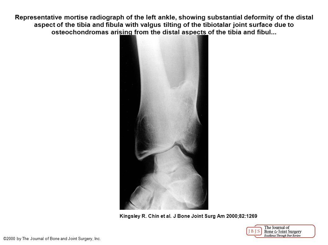 Representative mortise radiograph of the left ankle, showing substantial deformity of the distal aspect of the tibia and fibula with valgus tilting of