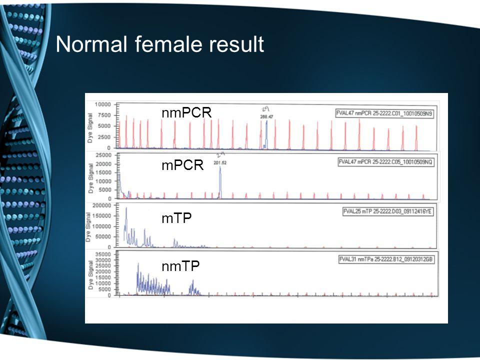 Normal female resultnmPCRmPCRmTPnmTP