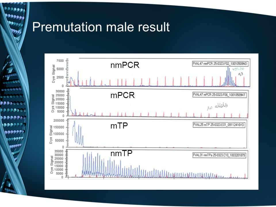 Premutation male result nmPCRmPCRmTPnmTP