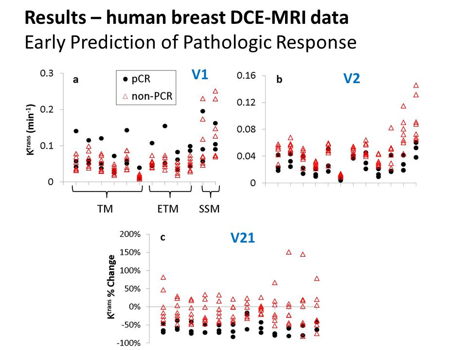 Results – human breast DCE-MRI data Early Prediction of Pathologic Response V1 V2 V21