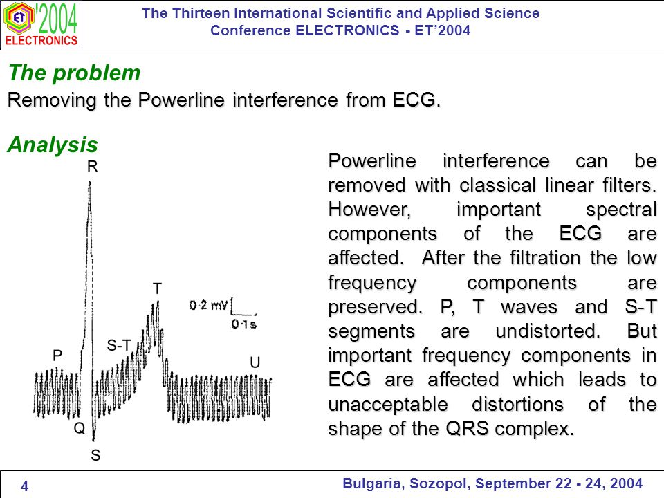 The problem Removing the Powerline interference from ECG.
