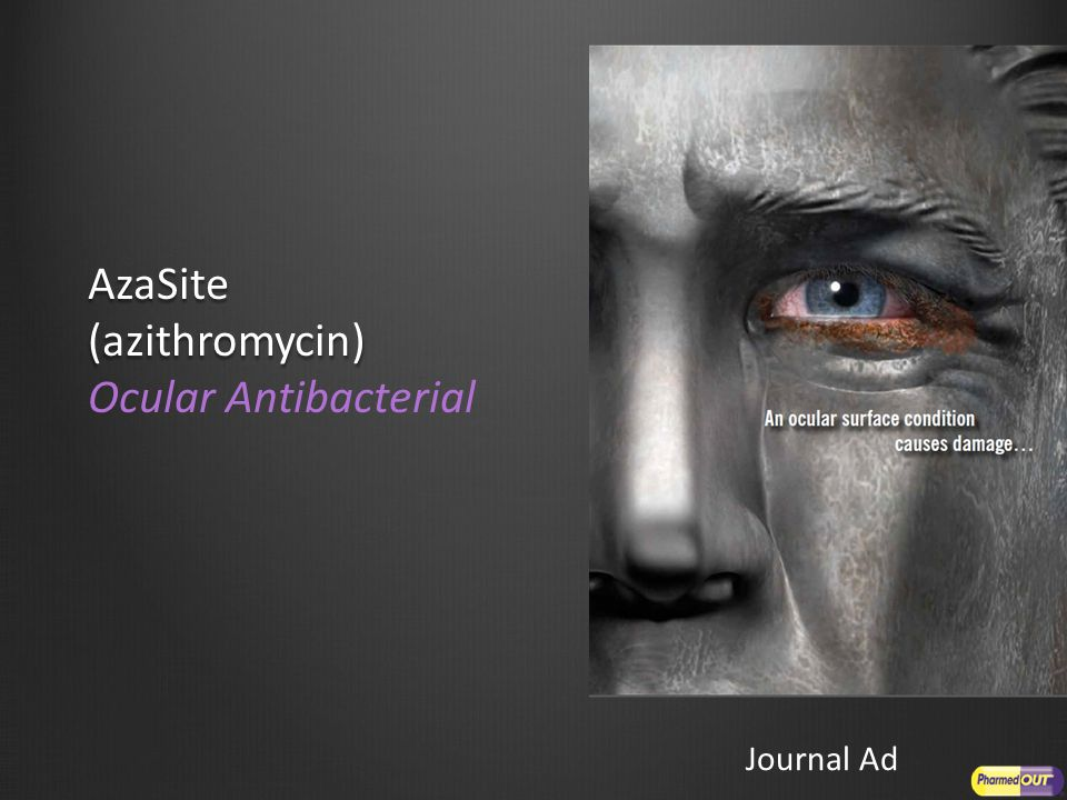 AzaSite (azithromycin) AzaSite (azithromycin) Ocular Antibacterial Journal Ad