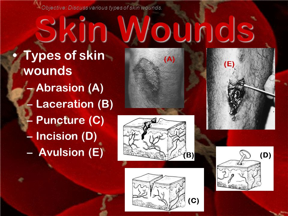 Skin Wounds Types of skin wounds –Abrasion (A) –Laceration (B) –Puncture (C) –Incision (D) – Avulsion (E) Objective: Discuss various types of skin wounds.