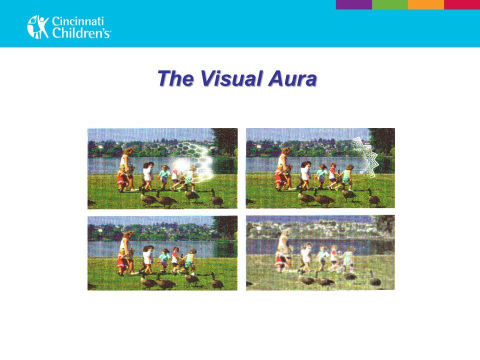 The Visual Aura