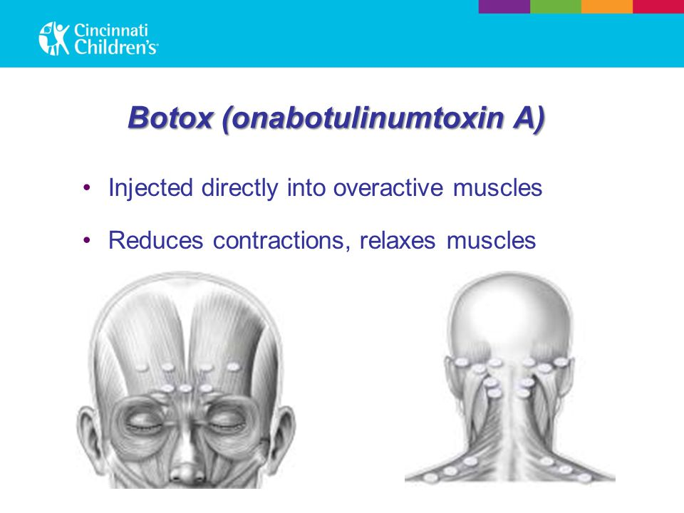 Botox (onabotulinumtoxin A) Injected directly into overactive muscles Reduces contractions, relaxes muscles
