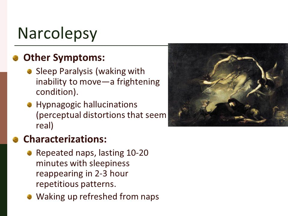 Differential Diagnosis There is a group of patients with all the symptoms of narcolepsy, including HLA-DR2 positivity, along with two or more sleep-onset REM periods during MSLT, and may also have hypnagogic hallucinations and/or sleep paralysis but they DO NOT have cataplexy.
