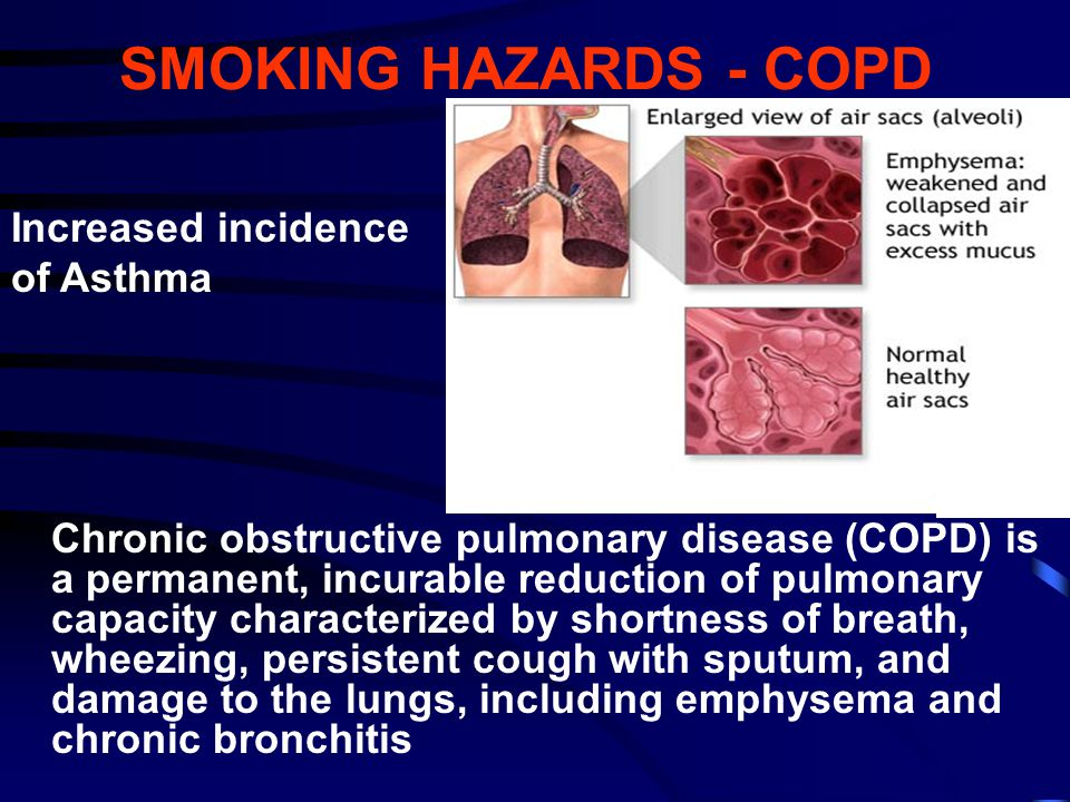 SMOKING HAZARDS - COPD Chronic obstructive pulmonary disease (COPD) is a permanent, incurable reduction of pulmonary capacity characterized by shortne