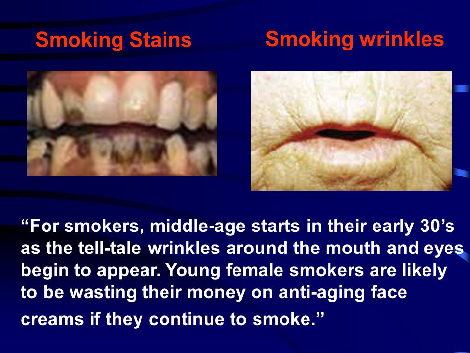 """Smoking Stains Smoking wrinkles """"For smokers, middle-age starts in their early 30's as the tell-tale wrinkles around the mouth and eyes begin to appea"""