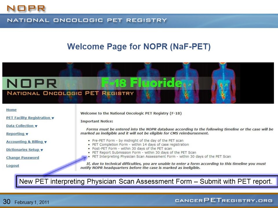 Welcome Page for NOPR (NaF-PET) New PET interpreting Physician Scan Assessment Form – Submit with PET report.