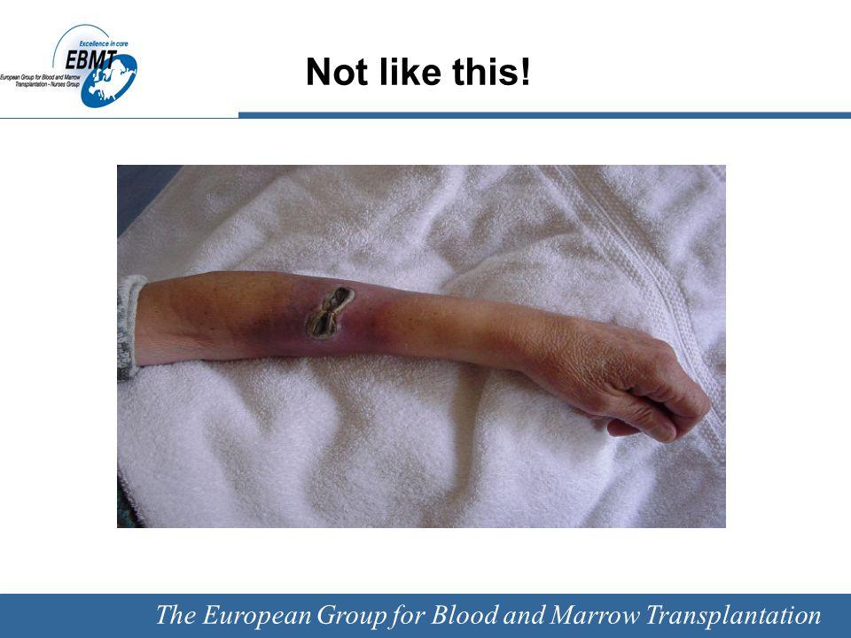 The European Group for Blood and Marrow Transplantation Educational intervention Warren DK et.al.