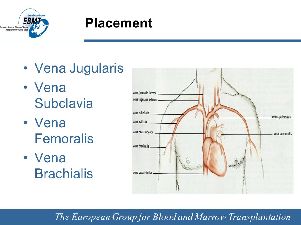 The European Group for Blood and Marrow Transplantation Complications CVC Insertion: perforation bleeding pneumothorax arrhythmias During treatment: extravasations thrombosis catheter related infections