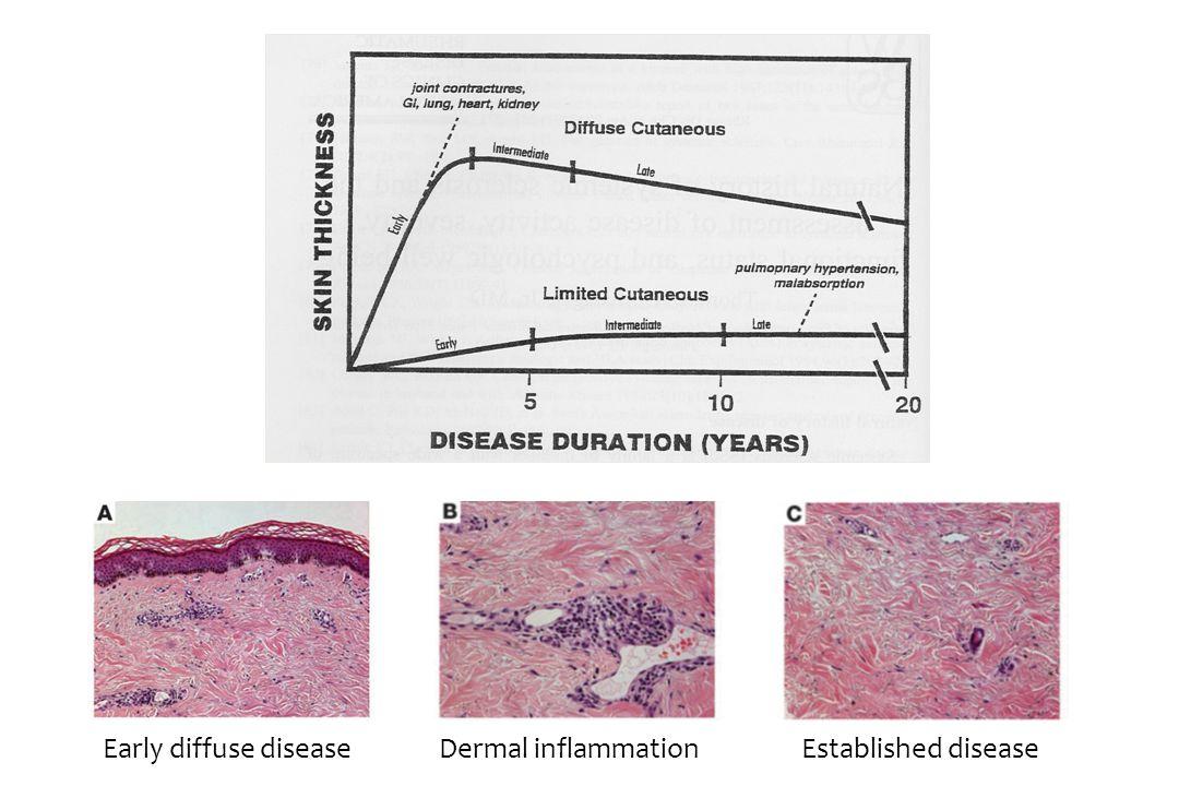 Early diffuse diseaseEstablished diseaseDermal inflammation