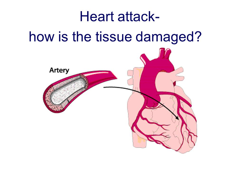 Heart attack- how is the tissue damaged?