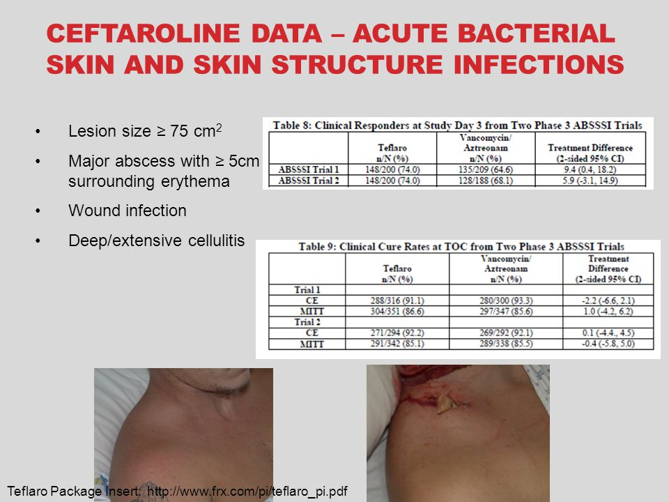 CEFTAROLINE DATA – ACUTE BACTERIAL SKIN AND SKIN STRUCTURE INFECTIONS Lesion size ≥ 75 cm 2 Major abscess with ≥ 5cm surrounding erythema Wound infection Deep/extensive cellulitis Teflaro Package Insert: http://www.frx.com/pi/teflaro_pi.pdf