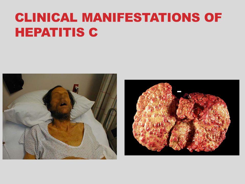 CLINICAL MANIFESTATIONS OF HEPATITIS C