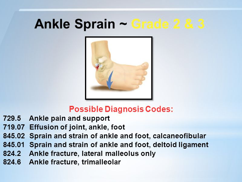 Ankle Sprain ~ Grade 2 & 3 Possible Diagnosis Codes: 729.5 Ankle pain and support 719.07 Effusion of joint, ankle, foot 845.02 Sprain and strain of ankle and foot, calcaneofibular 845.01 Sprain and strain of ankle and foot, deltoid ligament 824.2 Ankle fracture, lateral malleolus only 824.6 Ankle fracture, trimalleolar