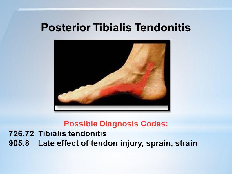 Posterior Tibialis Tendonitis Possible Diagnosis Codes: 726.72 Tibialis tendonitis 905.8 Late effect of tendon injury, sprain, strain