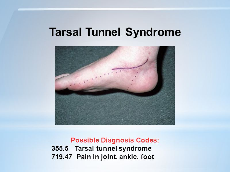 Tarsal Tunnel Syndrome Possible Diagnosis Codes: 355.5 Tarsal tunnel syndrome 719.47 Pain in joint, ankle, foot