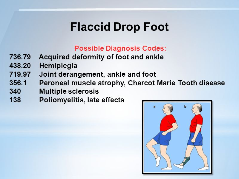 Flaccid Drop Foot Possible Diagnosis Codes: 736.79 Acquired deformity of foot and ankle 438.20 Hemiplegia 719.97 Joint derangement, ankle and foot 356.1 Peroneal muscle atrophy, Charcot Marie Tooth disease 340 Multiple sclerosis 138 Poliomyelitis, late effects