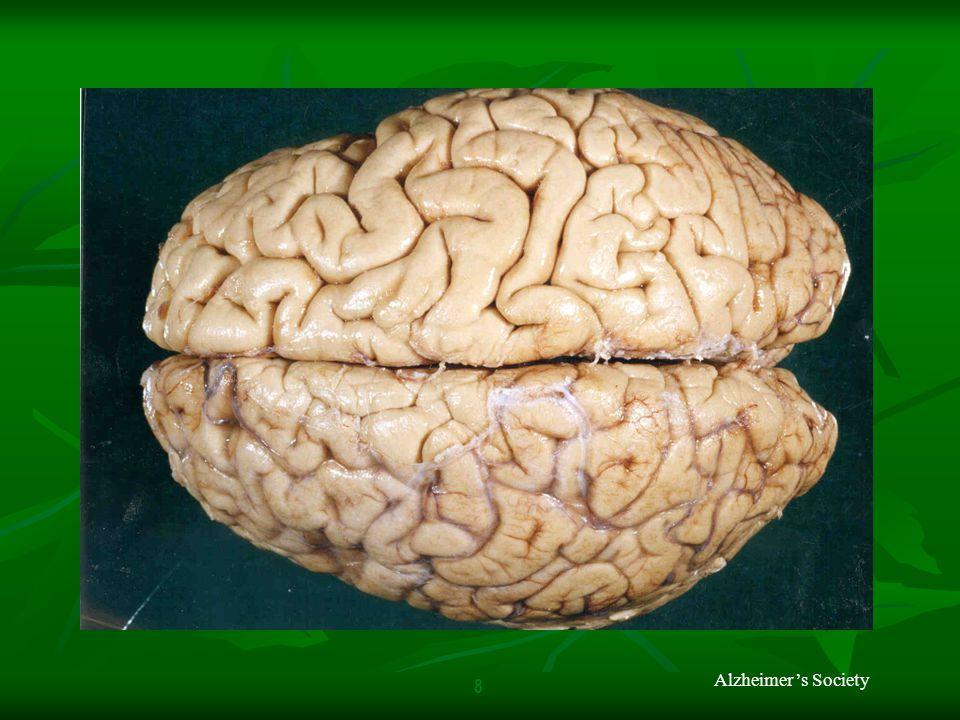 8 Alzheimer's Society