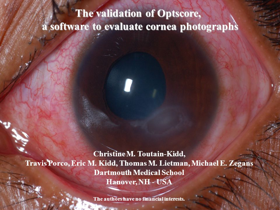 The validation of Optscore, a software to evaluate cornea photographs Christine M.