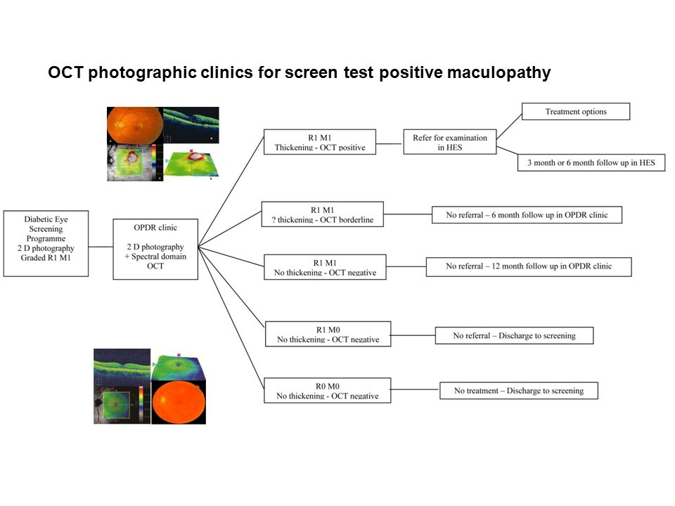 OCT photographic clinics for screen test positive maculopathy