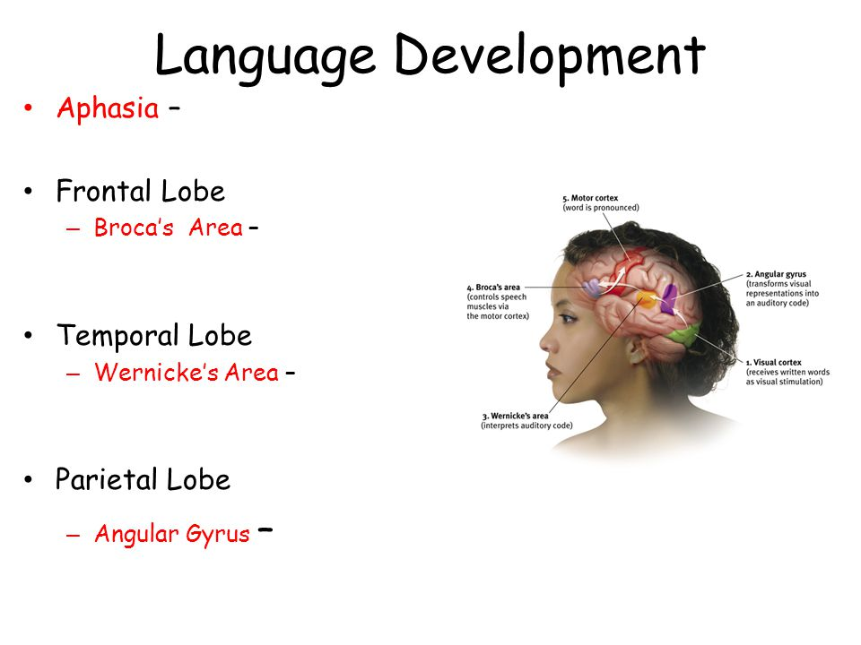 Language Development Aphasia – Frontal Lobe – Broca's Area – Temporal Lobe – Wernicke's Area – Parietal Lobe – Angular Gyrus –