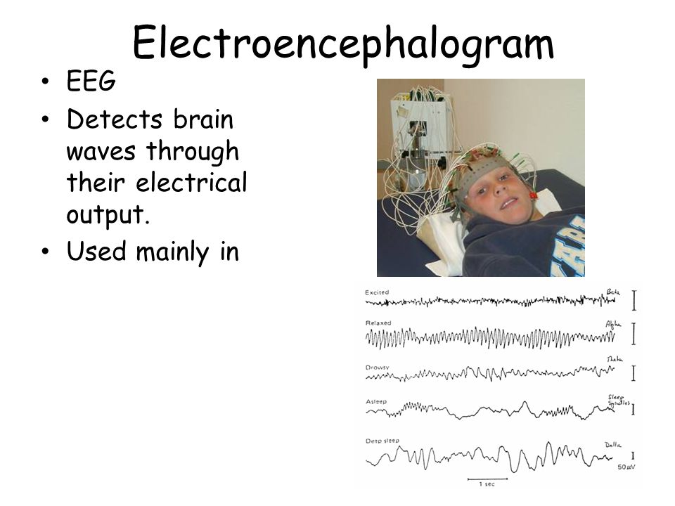Electroencephalogram EEG Detects brain waves through their electrical output. Used mainly in