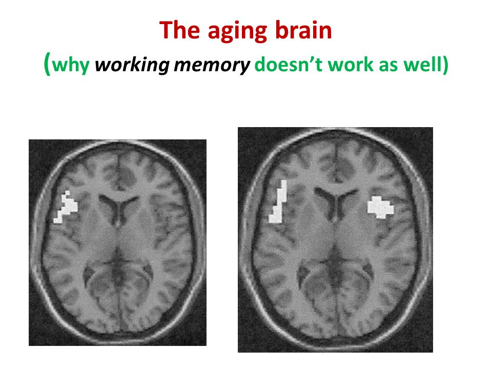 The aging brain ( why working memory doesn't work as well)