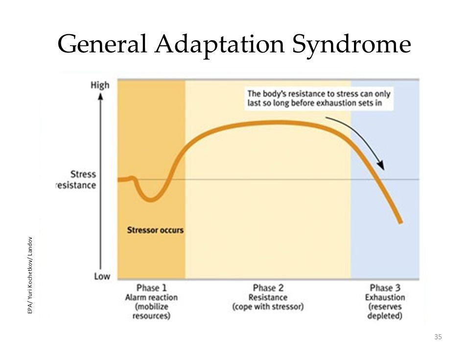 35 General Adaptation Syndrome EPA/ Yuri Kochetkov/ Landov