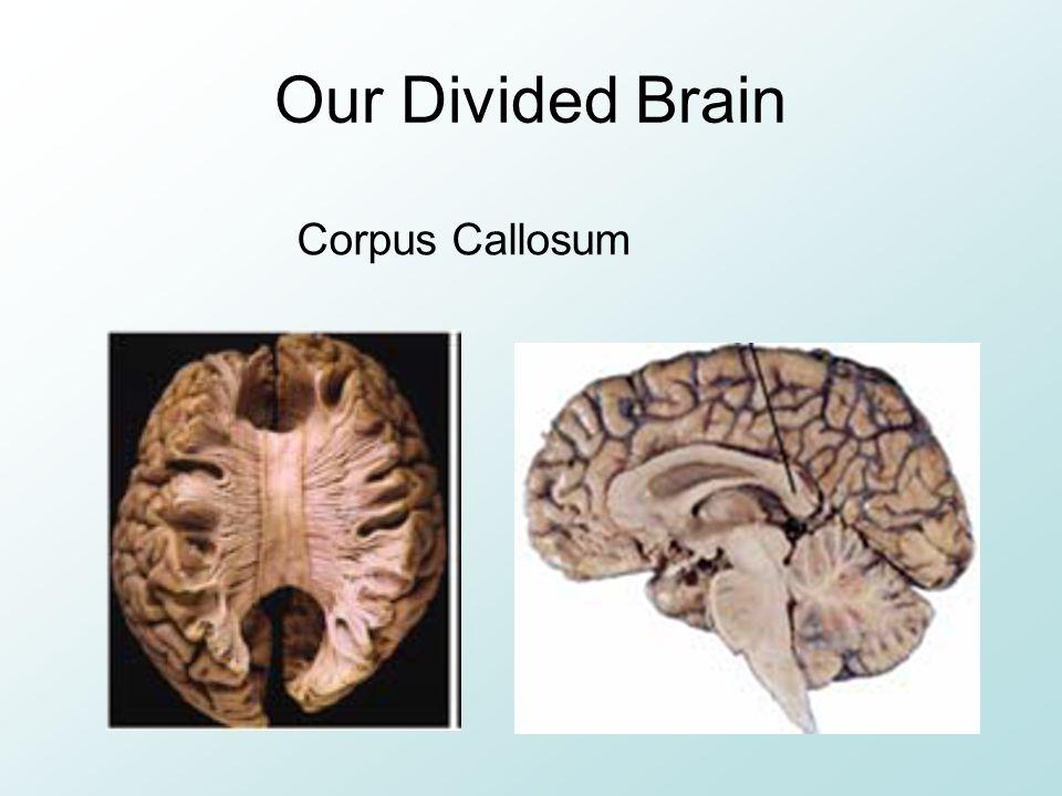 Our Divided Brain Corpus Callosum
