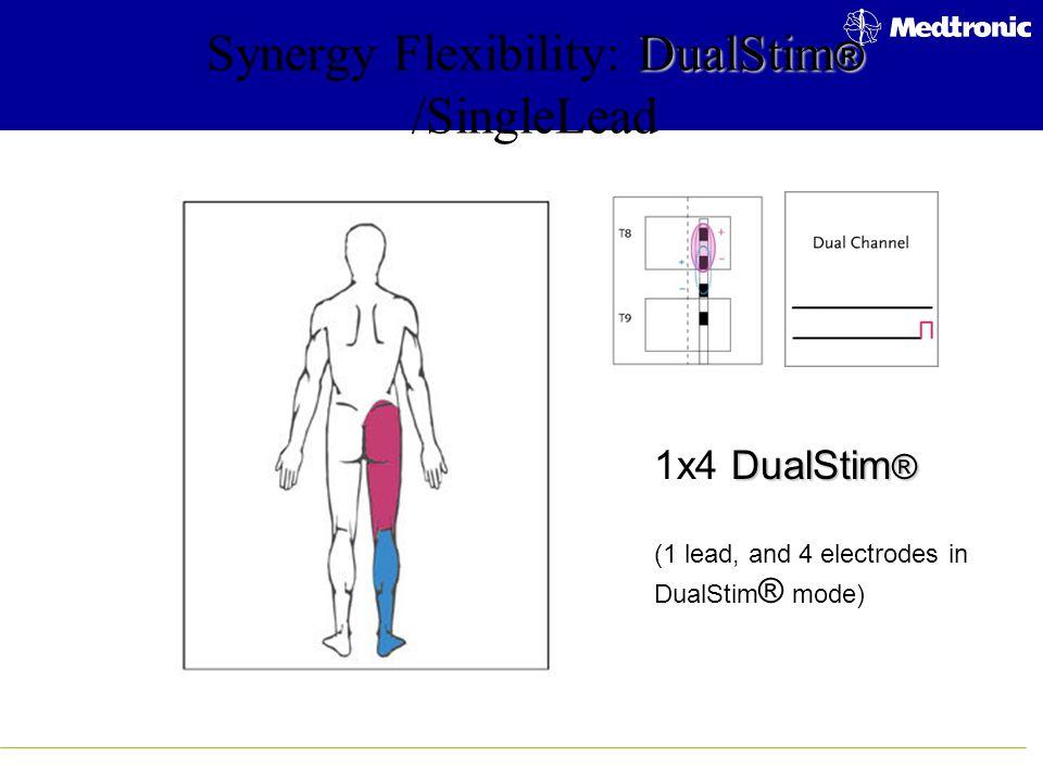 DualStim ® Synergy Flexibility: DualStim ® /SingleLead DualStim ® 1x4 DualStim ® (1 lead, and 4 electrodes in DualStim ® mode)