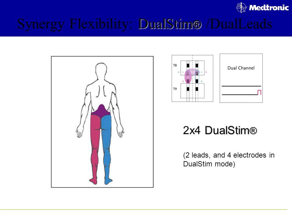 DualStim ® Synergy Flexibility: DualStim ® /DualLeads DualStim ® 2x4 DualStim ® (2 leads, and 4 electrodes in DualStim mode)