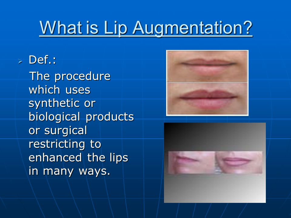 What is Lip Augmentation.