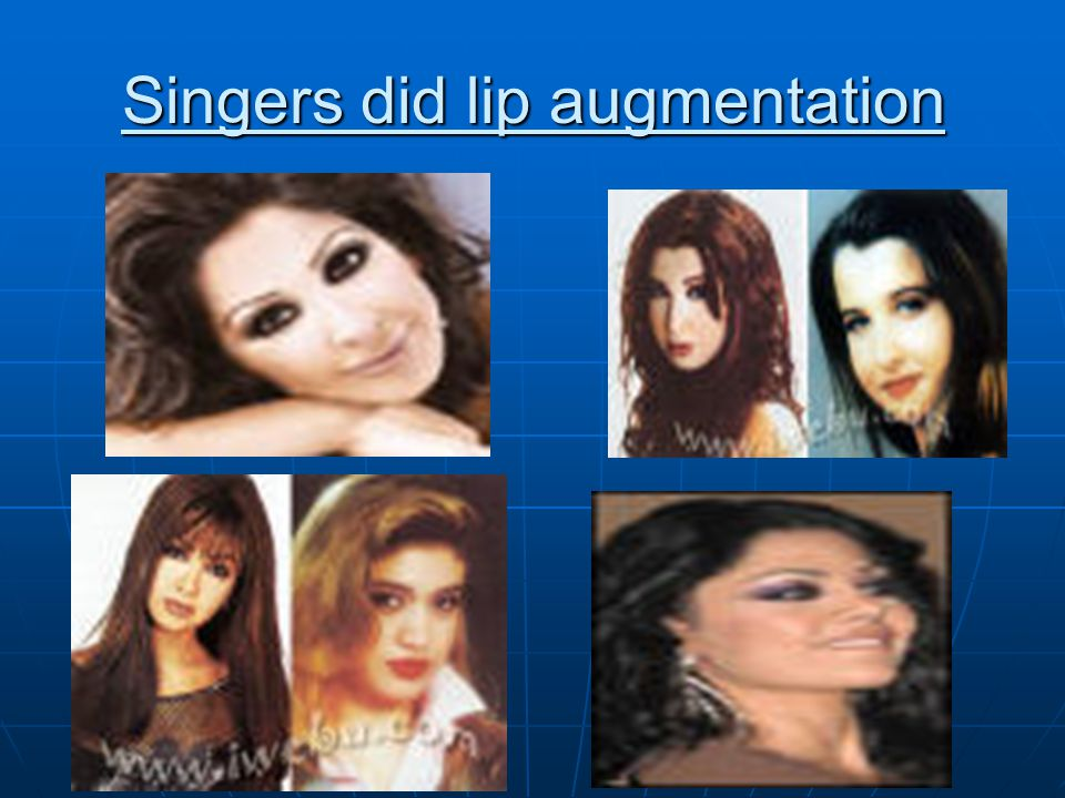 Singers did lip augmentation
