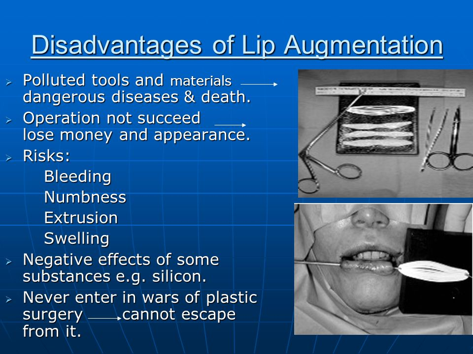 Disadvantages of Lip Augmentation  Polluted tools and materials dangerous diseases & death.