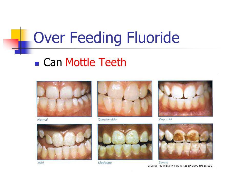 Over Feeding Fluoride Can Mottle Teeth