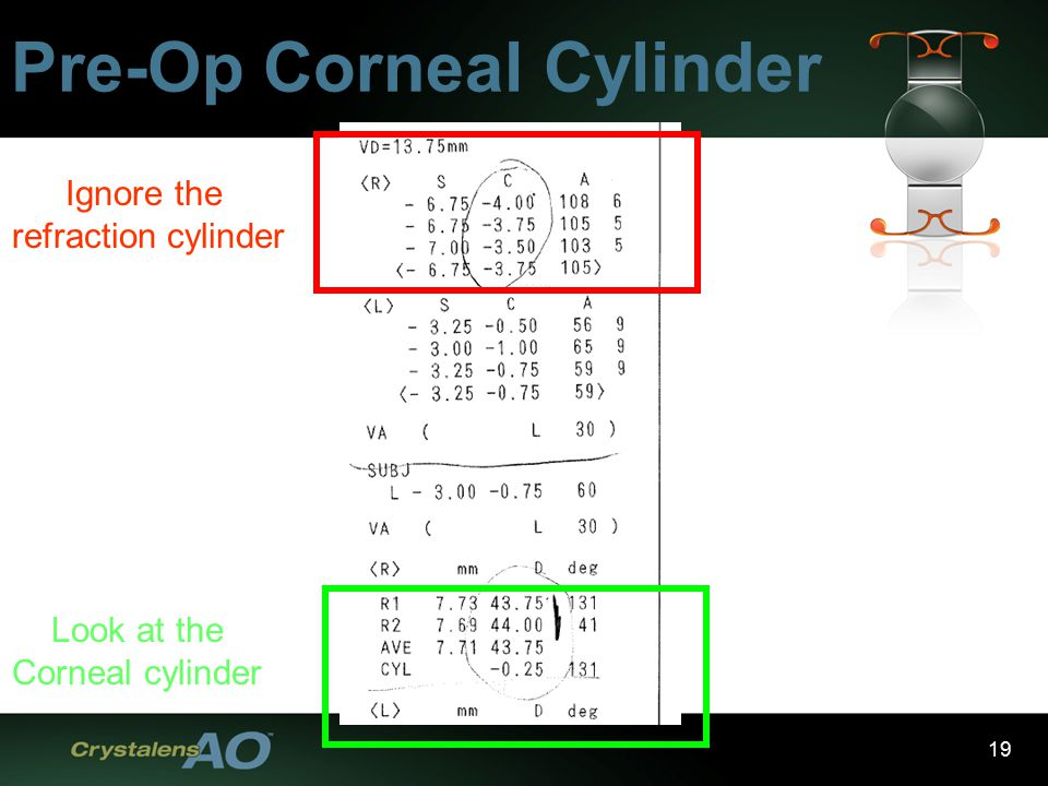 19 Pre-Op Corneal Cylinder Ignore the refraction cylinder Look at the Corneal cylinder