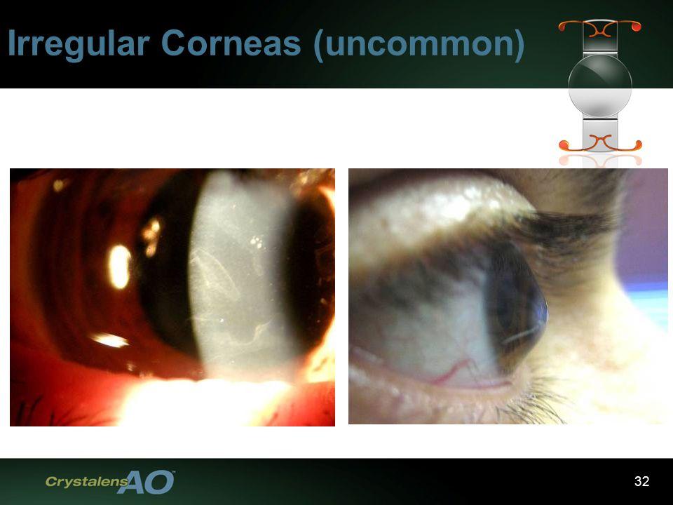 32 Irregular Corneas (uncommon)