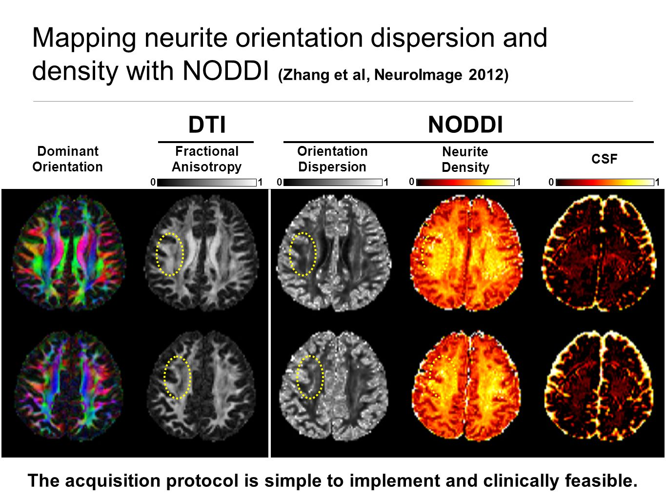 Mapping neurite orientation dispersion and density with NODDI (Zhang et al, NeuroImage 2012) Orientation Dispersion 01 Neurite Density 01 CSF 01 01 Fractional Anisotropy Dominant Orientation DTI NODDI The acquisition protocol is simple to implement and clinically feasible.
